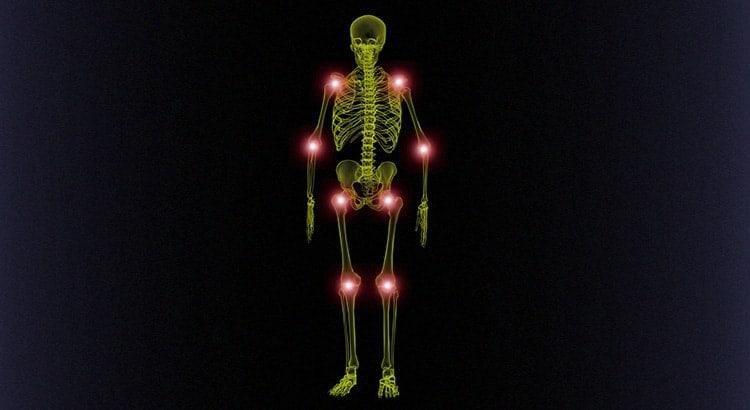 artrosi lavoro cause rimedi