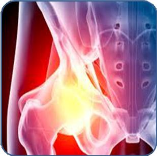 osteoarthritis-hip