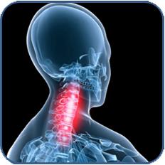 osteoarthritis-neck