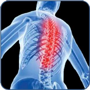 osteoarthritis-dorsal